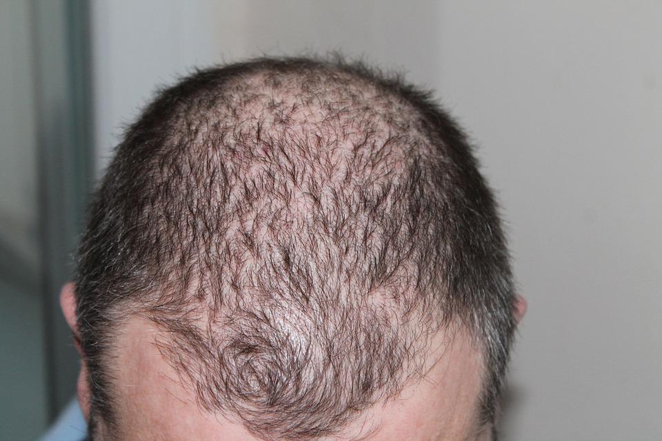 perte cheveux