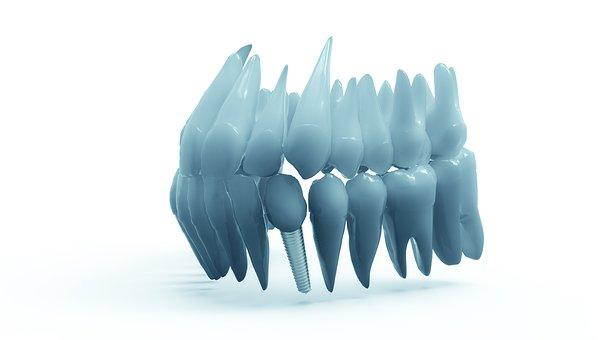 prix moyen implant dentaire