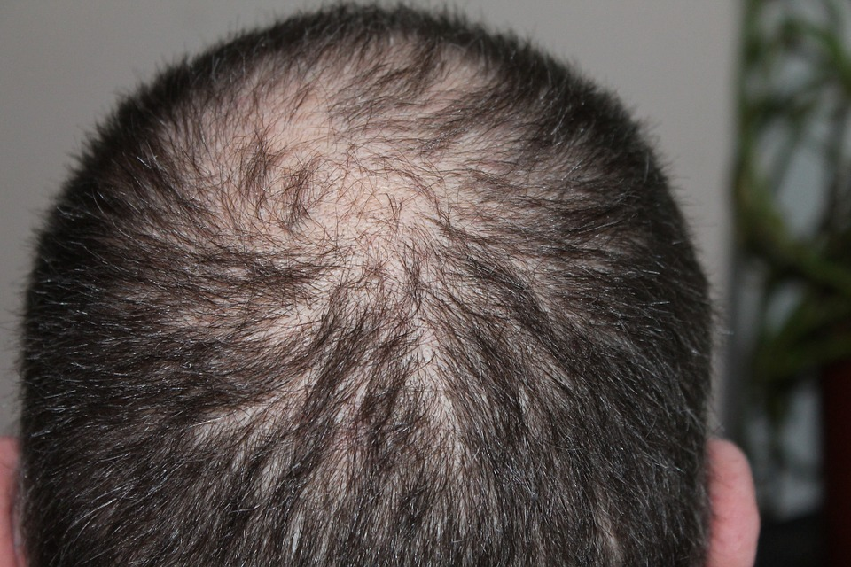 greffe cheveux FUE